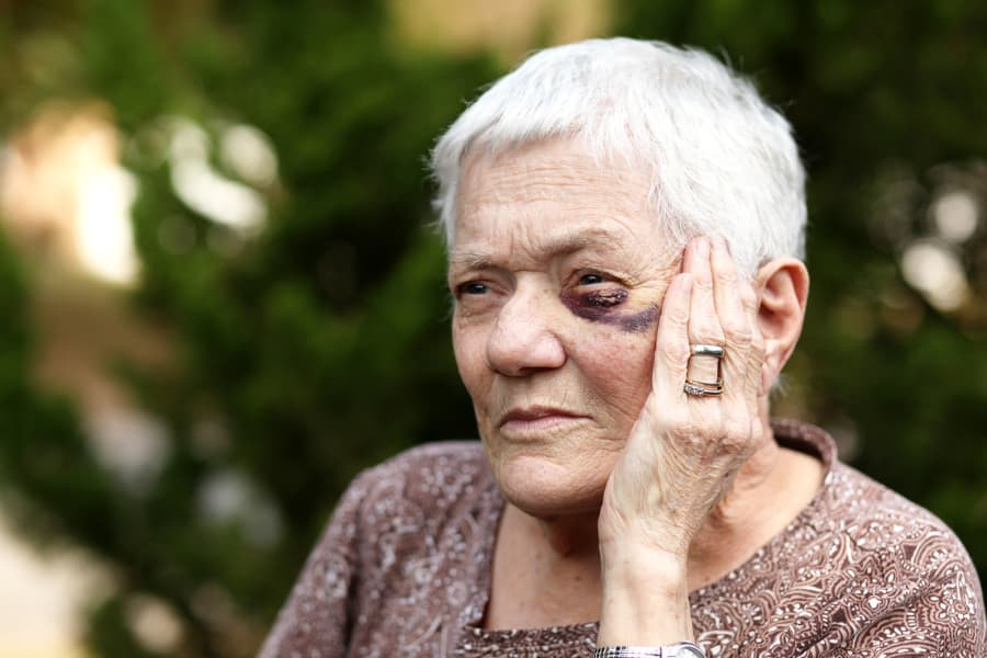 elderly woman with black eye holding her face