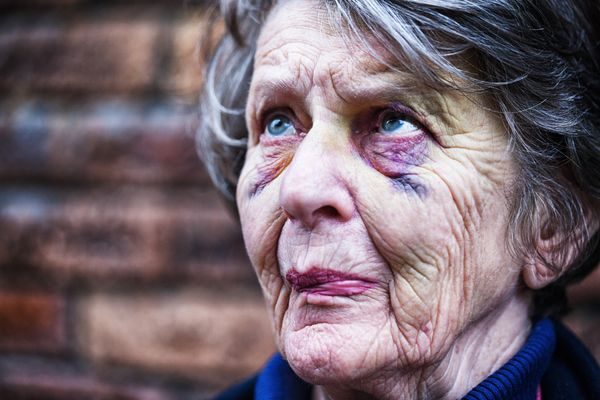 A senior woman with two black eyes, looking nervous